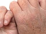خشکی و پوستک پوستک شدن جلد در فصل های خزان و زمستان و راه های درمان آن